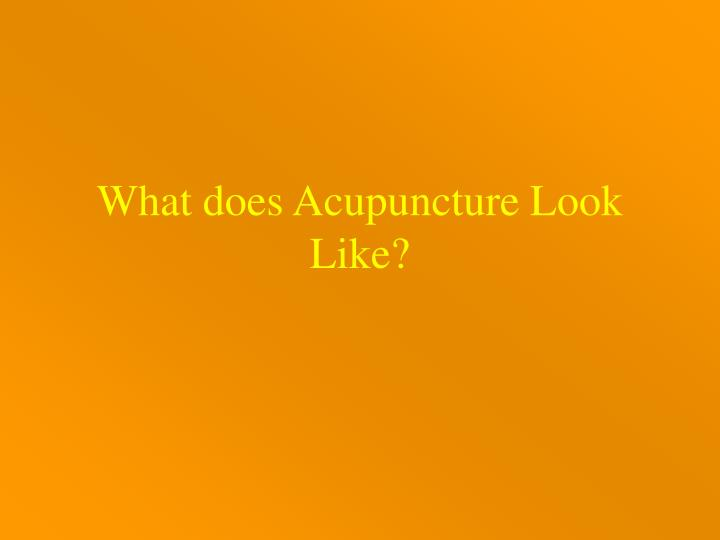 What does Acupuncture Look Like?