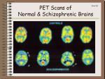 pet scans of normal schizophrenic brains