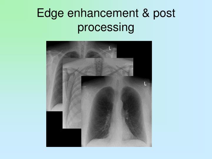 Edge enhancement & post processing