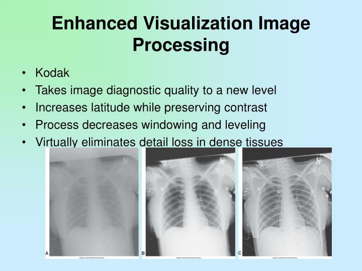 Enhanced Visualization Image Processing