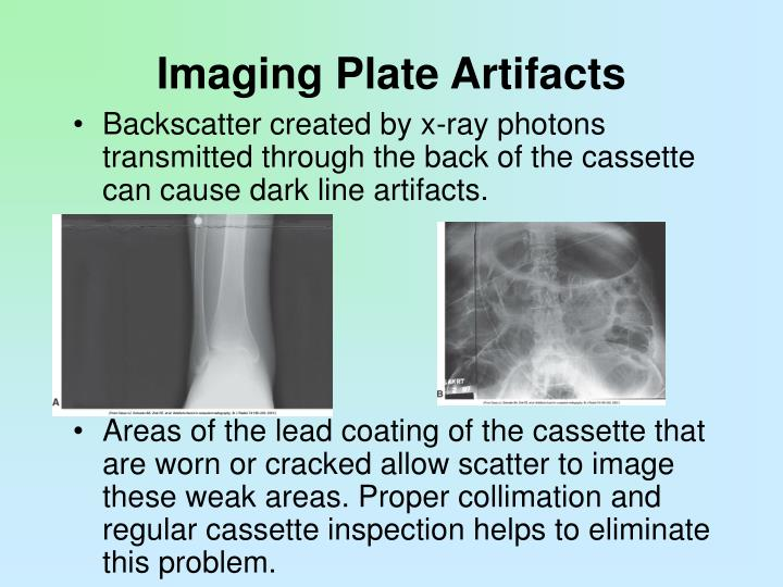 Imaging Plate Artifacts