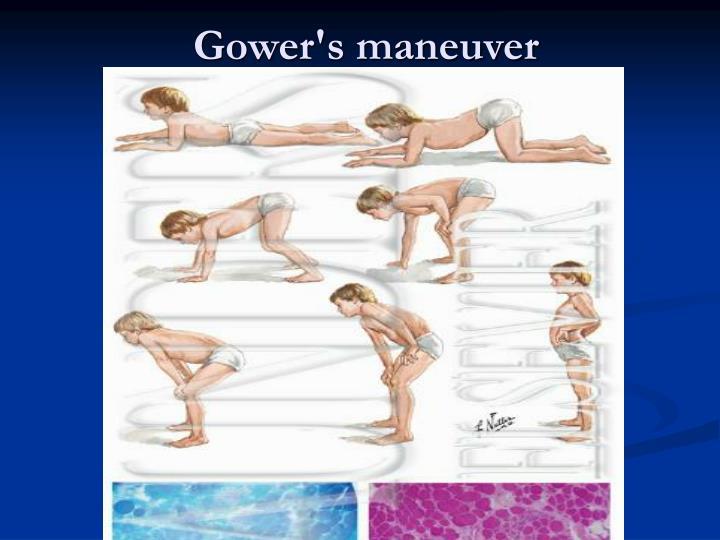 Gower's maneuver