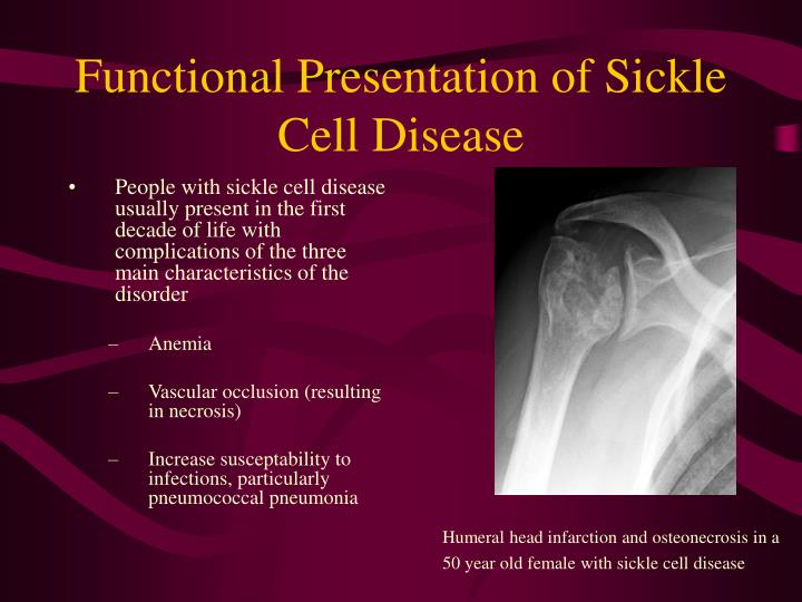 Functional Presentation of Sickle Cell Disease