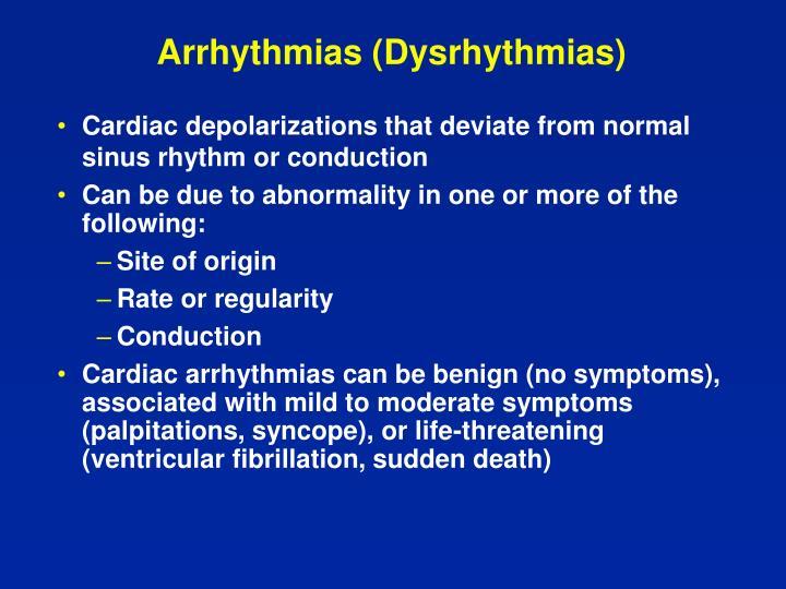 Arrhythmias dysrhythmias