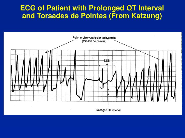 ECG of Patient with Prolonged QT Interval and Torsades de Pointes (From Katzung)