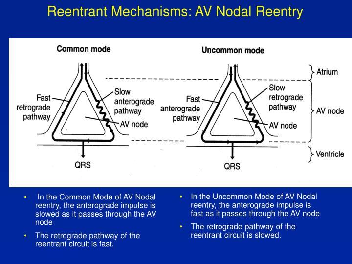 In the Common Mode of AV Nodal reentry, the anterograde impulse is slowed as it passes through the AV node