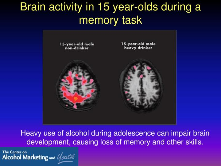Brain activity in 15 year-olds during a memory task
