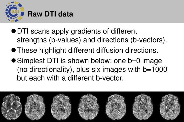 Raw DTI data