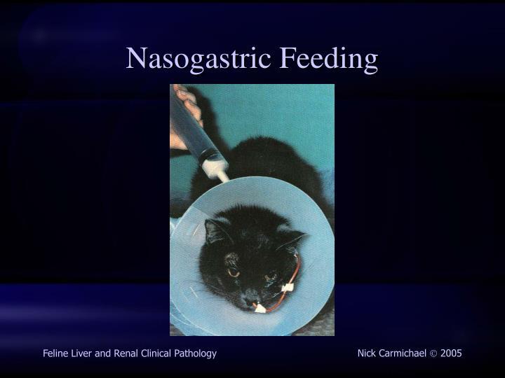 Nasogastric Feeding