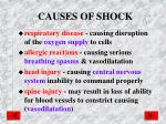 causes of shock1
