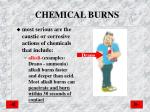 chemical burns1