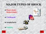 major types of shock