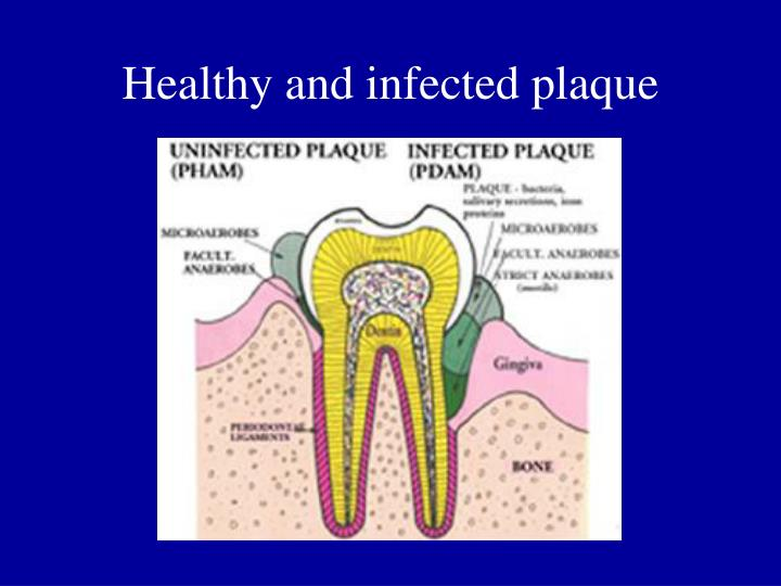 Healthy and infected plaque
