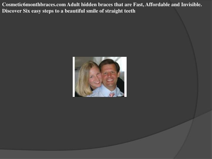 Cosmetic6monthbraces.com Adult hidden braces that are Fast, Affordable and Invisible. Discover Six e...
