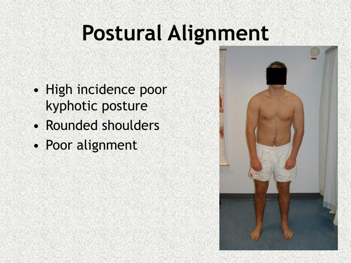 High incidence poor kyphotic posture