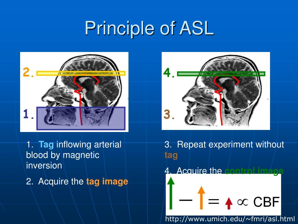 PPT - Arterial spin labeling PowerPoint Presentation, free..
