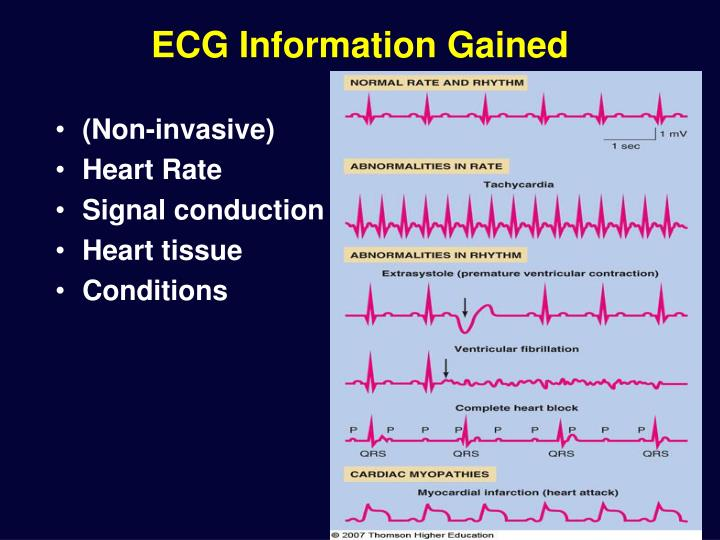 ECG Information Gained