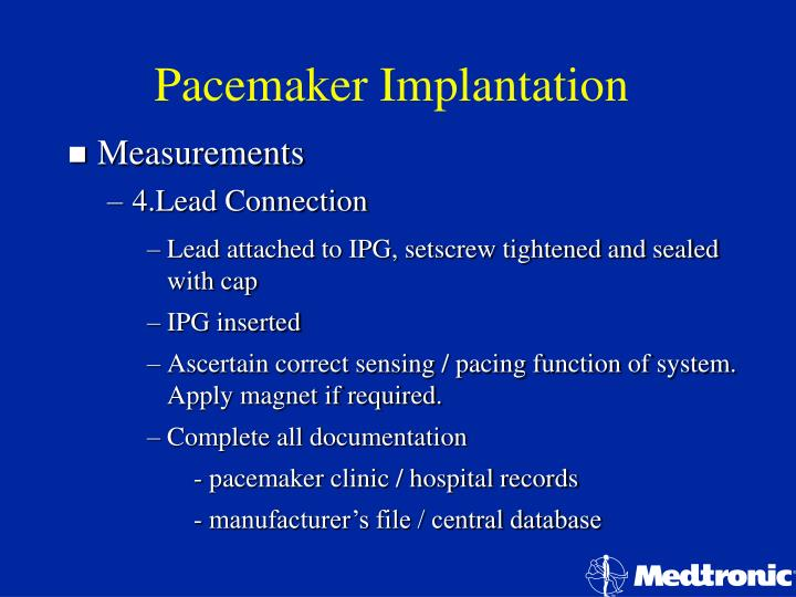 Pacemaker Implantation