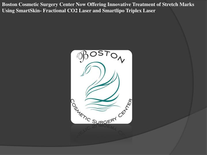 Boston Cosmetic Surgery Center Now Offering Innovative Treatment of Stretch Marks Using SmartSkin- F...