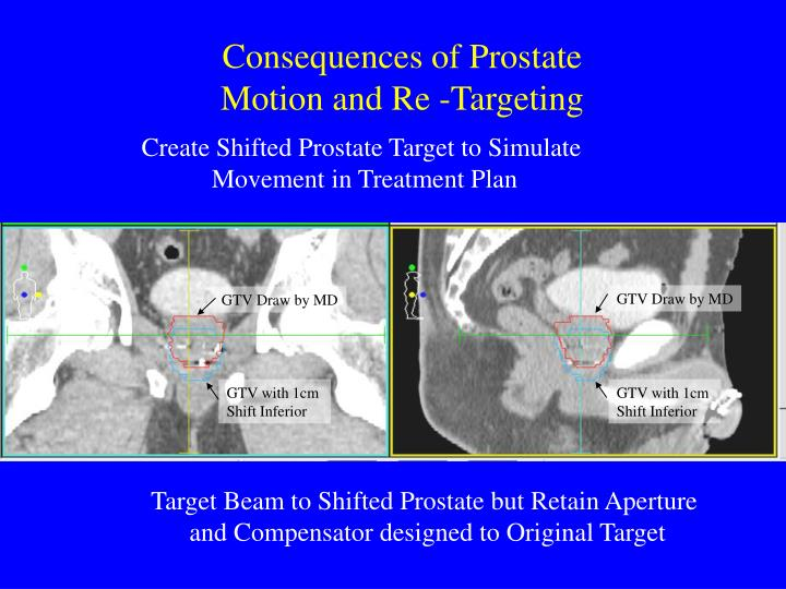 Consequences of Prostate