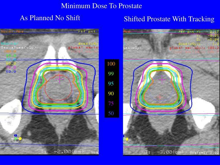 Minimum Dose To Prostate