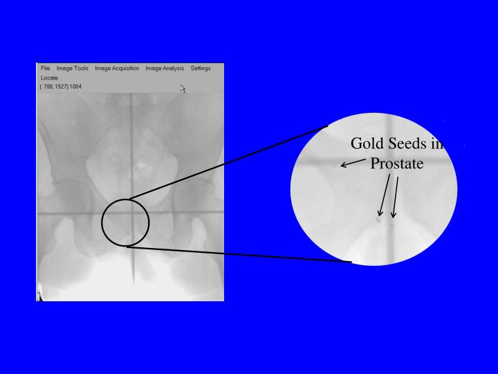 Gold Seeds in Prostate