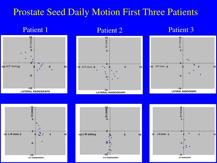Prostate Seed Daily Motion First Three Patients