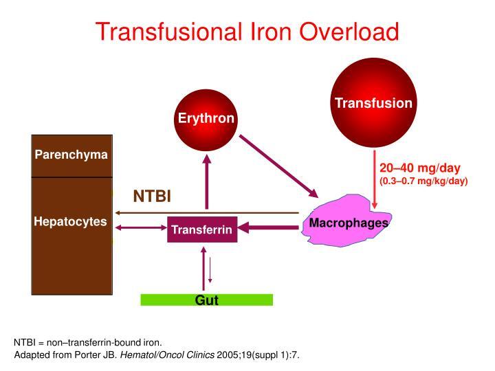 Transfusional Iron Overload