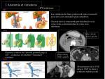 1 anatomie et variations4