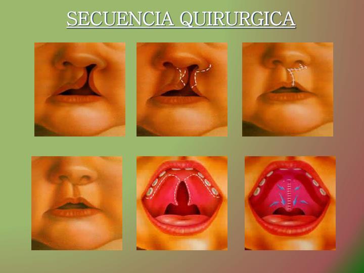 SECUENCIA QUIRURGICA