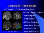 visualising tractograms