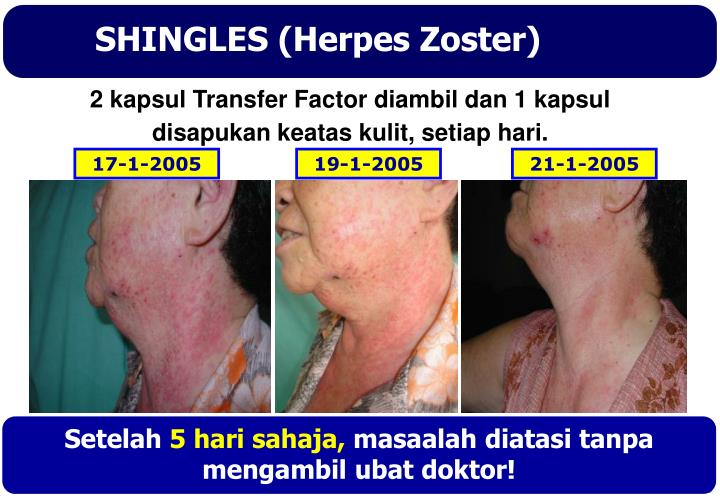 SHINGLES (Herpes Zoster)