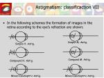 astigmatism classificaction vii
