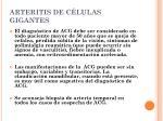 arteritis de c lulas gigantes
