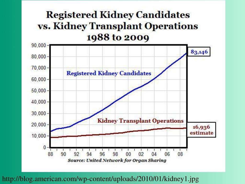 http://blog.american.com/wp-content/uploads/2010/01/kidney1.jpg