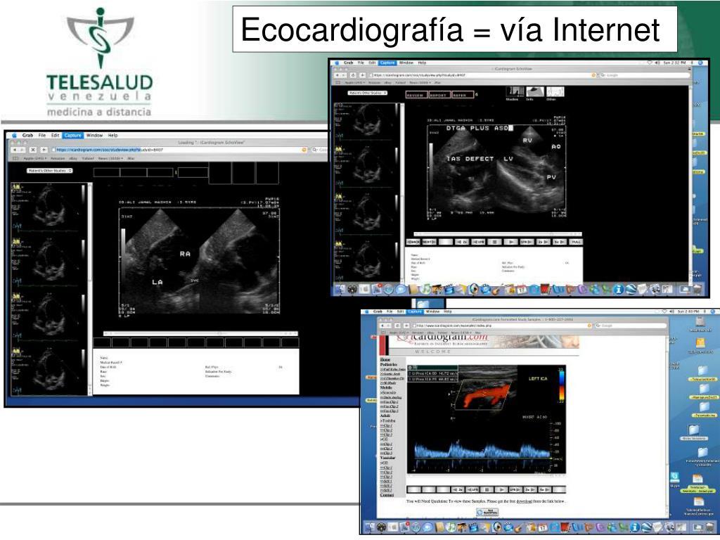 Ecocardiograf