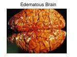 edematous brain