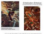 embolization embolus thromboembolism of pulmonary artery