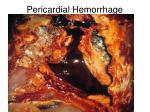 pericardial hemorrhage
