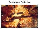 pulmonary embolus