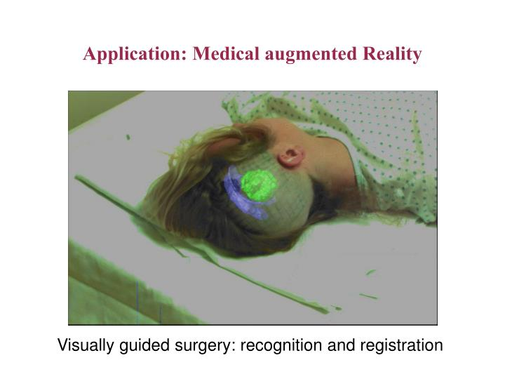 Application: Medical augmented Reality