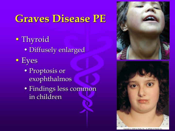 Graves Disease PE