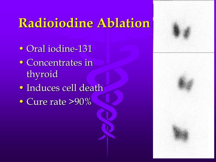 Radioiodine Ablation