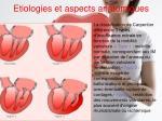 etiologies et aspects anatomiques