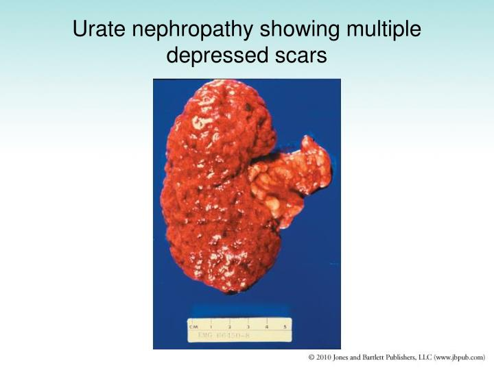 Urate nephropathy showing multiple depressed scars
