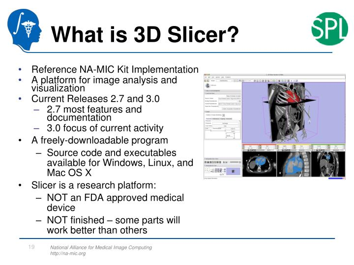 What is 3D Slicer?