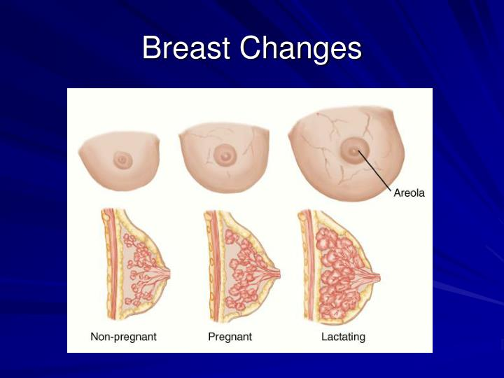 Breast Changes