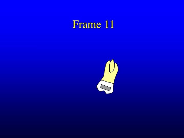 Frame 11