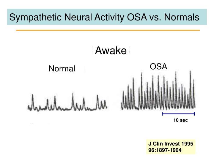 Sympathetic Neural Activity OSA vs. Normals
