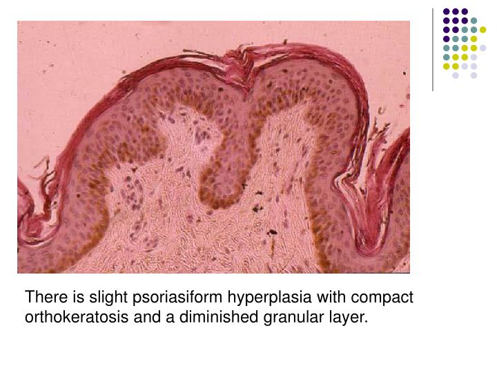 There is slight psoriasiform hyperplasia with compact orthokeratosis and a diminished granular layer.